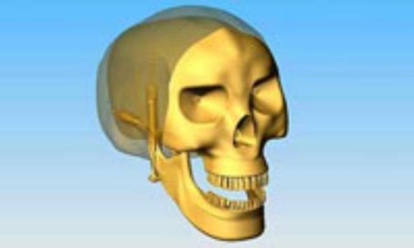 نشانگان مفصل گیجگاهی ـ فک تحتانیچ