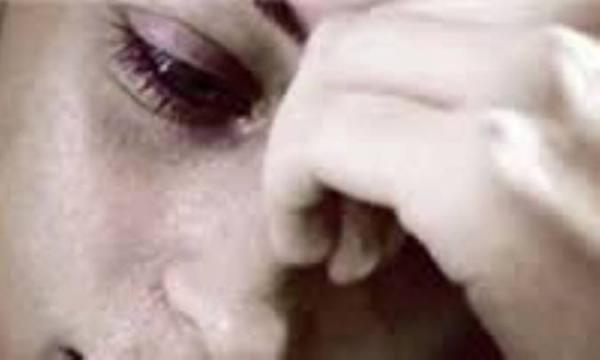 اختلالات روان پزشکی پس از زایمان